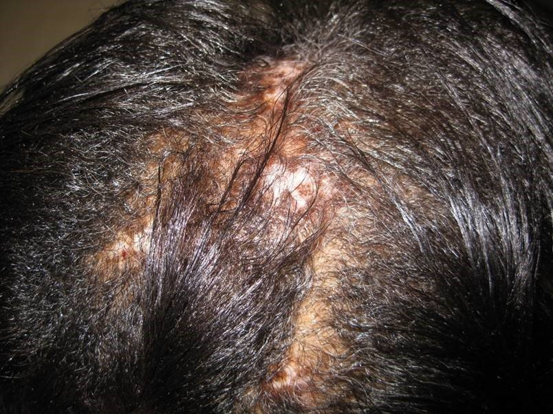 Discoid Lupus - hair transplant surgery near me - hair transplant surgeon Liberty MO - hair transplant surgeon Kansas City - hair transplant surgeon near me - fue hair transplant - fut hair transplant - hair loss - hair transplant Kansas City hair transplant Liberty MO - hair transplant cost - hair restoration - hair implants -