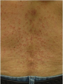 Keratosis Follicularis Spinulosa Decalvans - hair transplant surgery near me - hair transplant surgeon Liberty MO - hair transplant surgeon Kansas City - hair transplant surgeon near me - fue hair transplant - fut hair transplant - hair loss - hair transplant Kansas City hair transplant Liberty MO - hair transplant cost - hair restoration - hair implants -