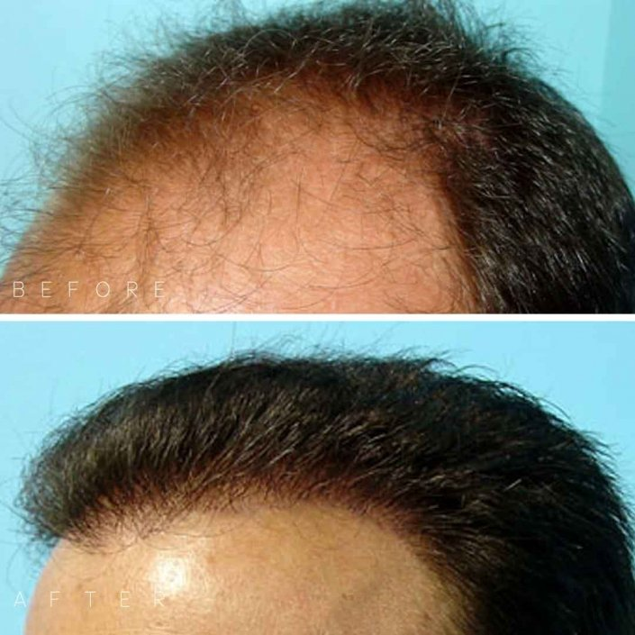 Darling Hair Restoration Before & After Photo