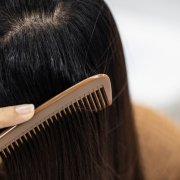 Problem of Young woman hair loss, with thin hair.